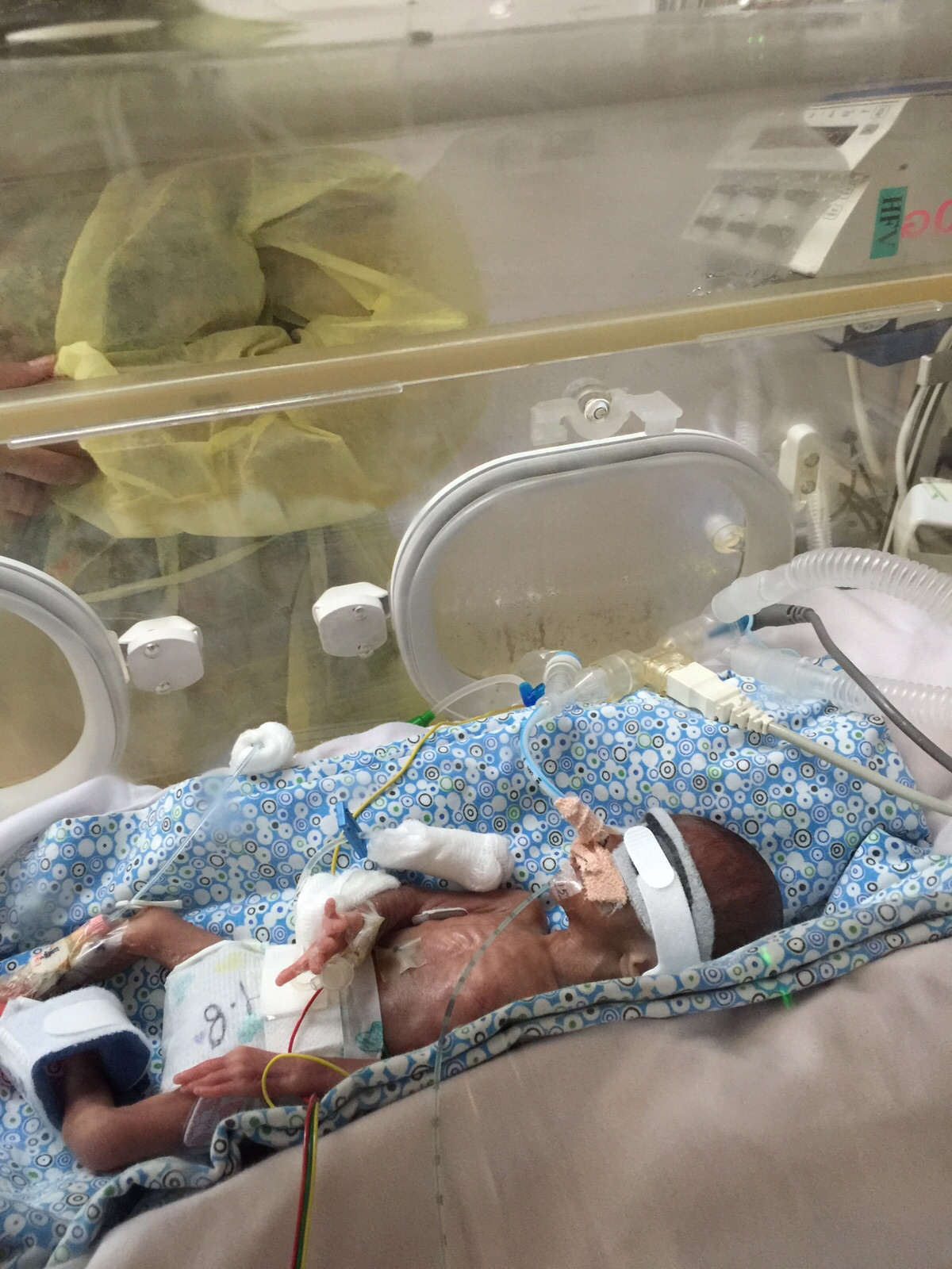 Baby Born At 20 Weeks Survival Rate: Kangaroo Care Helped Dubai's 450gm 'miracle' Baby Survive